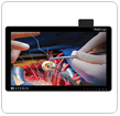 Wireless Vividimage D Surgical Display