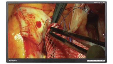 Surgical Displays and Large Format Displays
